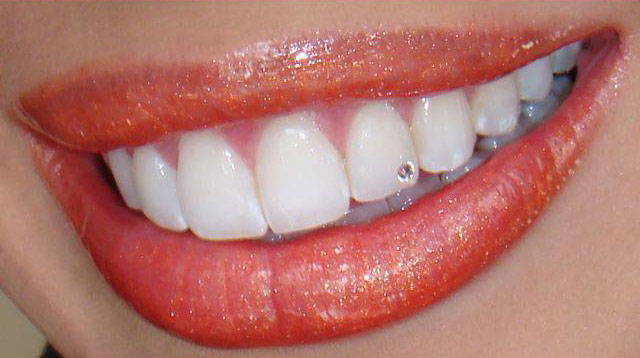 tooth piercing with a tooth gem